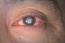 Katarak adalah salah satu jenis cacat mata yang umumnya menyerang lansia