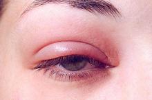 Kelopak mata bengkak gejala yang timbul berupa mata selalu berair, merah dan rasa sakit pada kelopak mata.