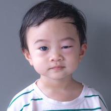 Bintitan dan kalazion dapat menjadi penyebab mata anak bengkak.