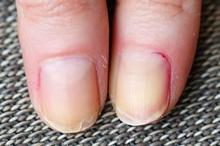 Kuku rapuh dan mudah patah merupakan gejala kekurangan vitamin yang paling jelas terlihat