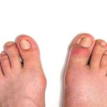 Jempol kaki bengkak dapat disebabkan oleh cedera.