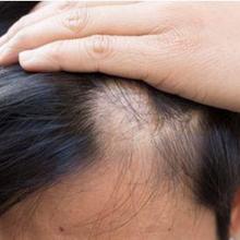 Tidak hanya penyakit, rambut anak rontok juga bisa disebabkan kebiasaan menarik dan memutar rambut.