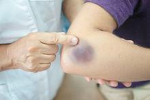 Cara mengobati luka memar salah satunya adalah dengan kompres hangat