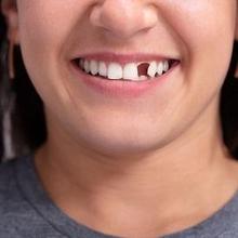 Cara agar gigi bisa tumbuh kembali saat dewasa tidaklah memungkinkan