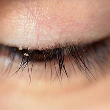 Kutu bulu mata adalah parasit yang umum ditemukan pada wajah