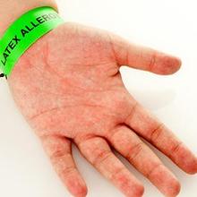 Alergi lateks rentan dialami petugas kesehatan