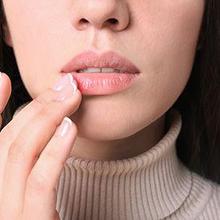Bibir bengkak bisa terjadi saat memakai lipstik