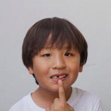 gigi anak ompong
