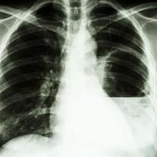 Salah satu jenis melioidosis yang paling terjadi yaitu infeksi paru-paru