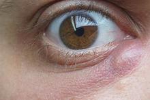Bisul tanpa mata tidak berbahaya tetapi bisa menimbulkan rasa nyeri
