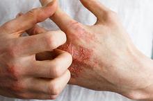 Neurodermatitis atau lichen simplex chronicus adalah masalah kulit yang ditandai dengan satu atau dua bercak namun terasa gatal