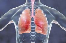Apakah bronkitis menular? Tergantung dari jenis bronkitisnya!