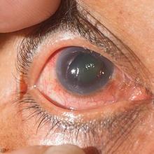 Untuk saat ini, glaukoma tidak bisa disembuhkan tetapi bisa dikendalikan