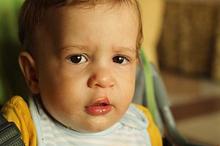 Salah satu cara untuk mencegah bibir sumbing karena faktor lingkungan adalah dengan mengonsumsi asam folat selama kehamilan