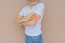 Obat gatal alergi antara lain antihistamin, kortikosteroid dan calamin