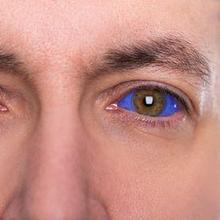 Tato mata dapat menyebabkan kebutaan