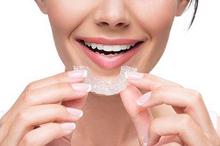 Salah satu cara memundurkan gigi tonggos adalah dengan menggunakan aligner