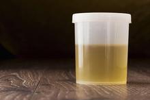 Terapi urine dipercaya bisa maksimalkan manfaat air kencing untuk kesehatan tubuh