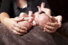 Kembar siam adalah kondisi bayi yang berbagi organ dan anggota tubuh