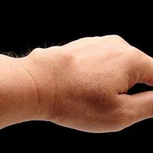 Kista ganglion, salah satu penyebab benjolan di tangan