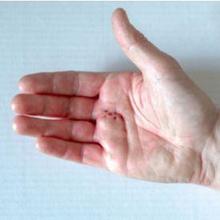 Benjolan di telapak tangan dapat disebabkan oleh kontraktur Dupuytren