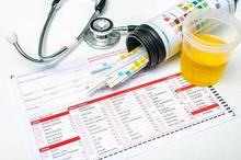 Mengukur nilai pH normal urine bisa dilakukan di laboratorium kesehatan
