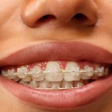 Berbagai Bentuk Gigi yang Harus Dibehel dan Metode Alternatifnya