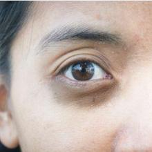 Lingkaran hitam di bawah mata adalah salah satu efek begadang bagi wajah