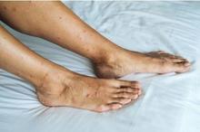 Bintik merah di kaki dapat disebabkan oleh psoriasis