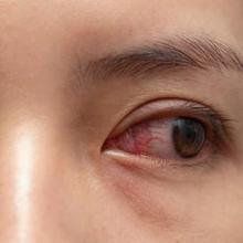 Ada beragam penyebab konjungtivitis yang memicu mata merah, termasuk infeksi bakteri, infeksi virus, reaksi alergi, hingga iritasi