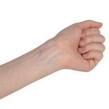 Ada berbagai penyebab urat tangan menonjol