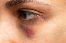 Hematoma adalah penumpukan darah abnormal di luar pembuluh darah