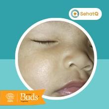 Sabun perawatan bayi Buds Organics dapat meredakan ruam pada kulit anak