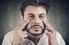 Cara memutihkan mata yang kuning ada beragam, tergantung dari penyebabnya