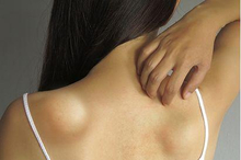 Benjolan lipoma berukuran kecil bisa diatasi dengan operasi eksisi.