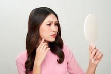 Bintik putih di wajah yang mengganggu penampilan perlu penanganan tepat