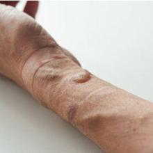 Cara mengobati luka bakar yang menggelembung ternyata bisa dilakukan di rumah.