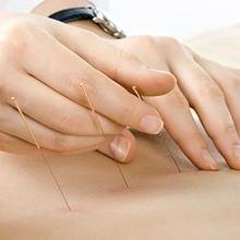 Pengobatan tusuk jarum relatif tidak menyakitkan bagi tubuh.