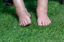 Edema anasarka adalah pembengkakan yang terjadi dari ujung kepala hingga kaki