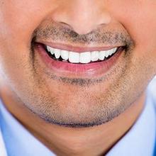 Gigi taring penting untuk menghancurkan makanan agar mudah dicerna