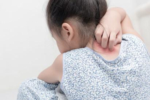 Scabies pada anak dapat menimbulkan gatal yang kadang lebih hebat dibandingkan pada orang dewasa