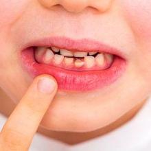 Gigi anak tumbuh miring dapat terjadi akibat kebiasaan yang buruk