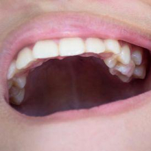 Masalah gigi bertumpuk pada anak bisa bertahan hingga dewasa