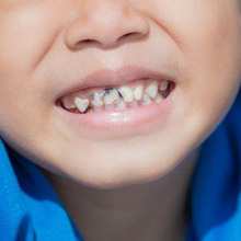 Gigi hitam pada anak dapat disebabkan oleh terbentuknya karang gigi
