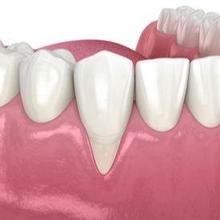 Penyebab gusi turun biasanya kesehatan gigi dan mulut yang buruk
