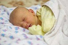 Hiperbilirubinemia adalah penyebab penyakit kuning pada bayi baru lahir