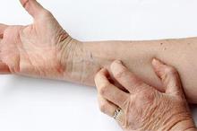 Infeksi parasit, dermatitis atopik, dan kulit kering adalah penyebab gatal pada kulit lansia