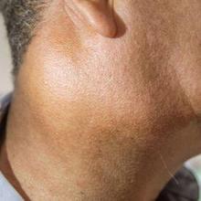 Bengkak di bawah telinga dapat disebabkan oleh gondongan