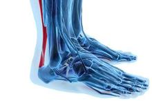 Tendinitis achilles adalah kondisi ketika tendon achilles mengalami peradangan