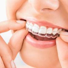 Invisalign adalah alat untuk merapikan gigi selain kawat gigi